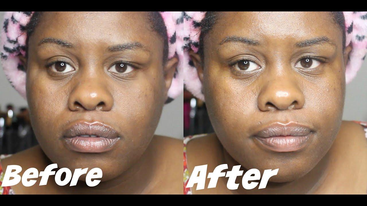kate somerville retinol eye cream review