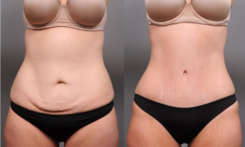 liposuction or tummy tuck reviews