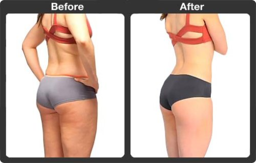 the brazilian buttock lift reviews