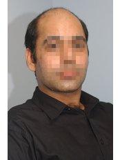 male hair loss treatment reviews