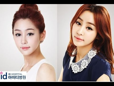 vip plastic surgery korea review