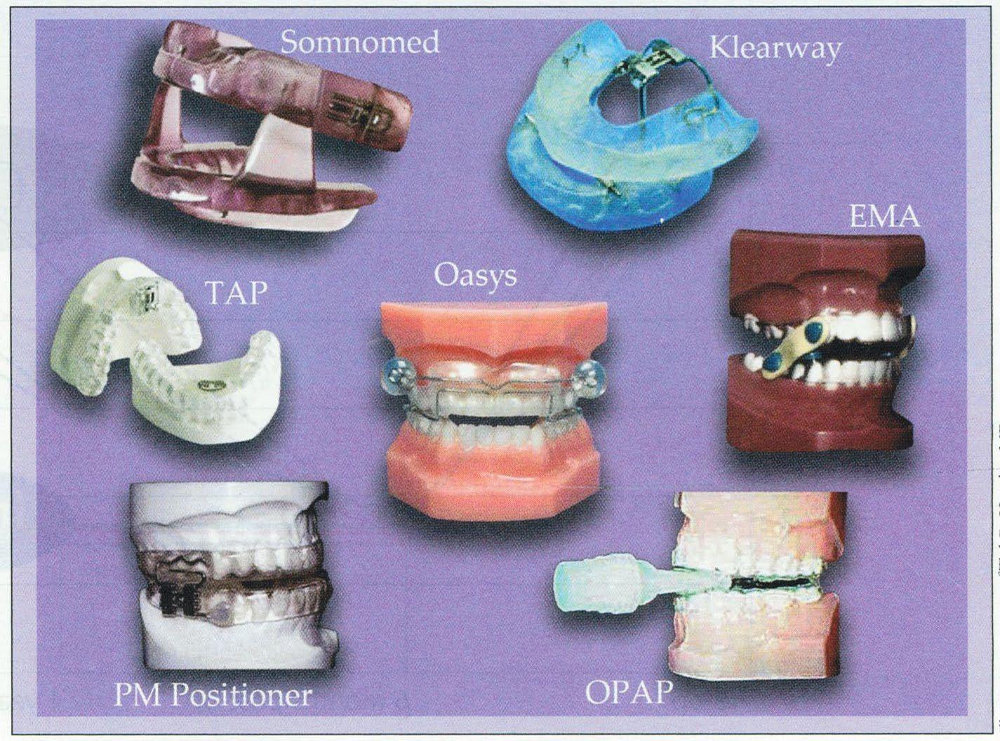 sleep apnea mouth appliance reviews