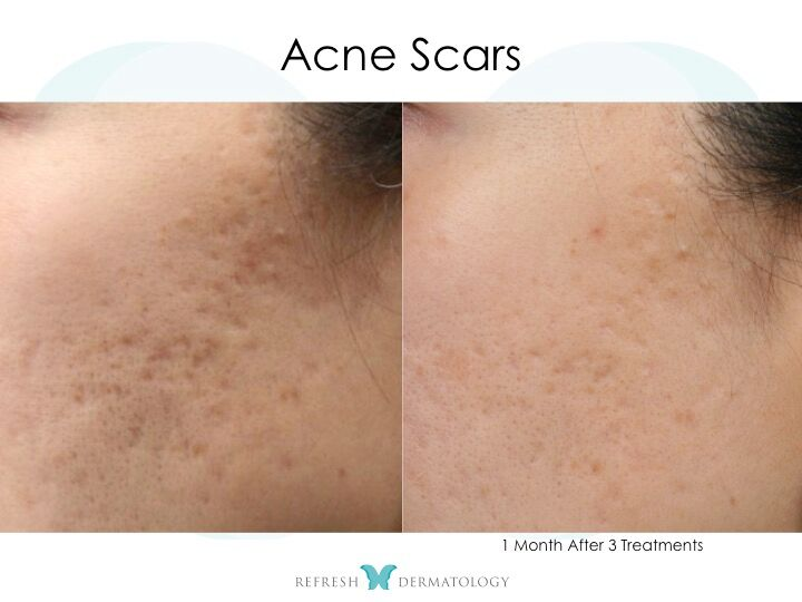ice for acne scars reviews