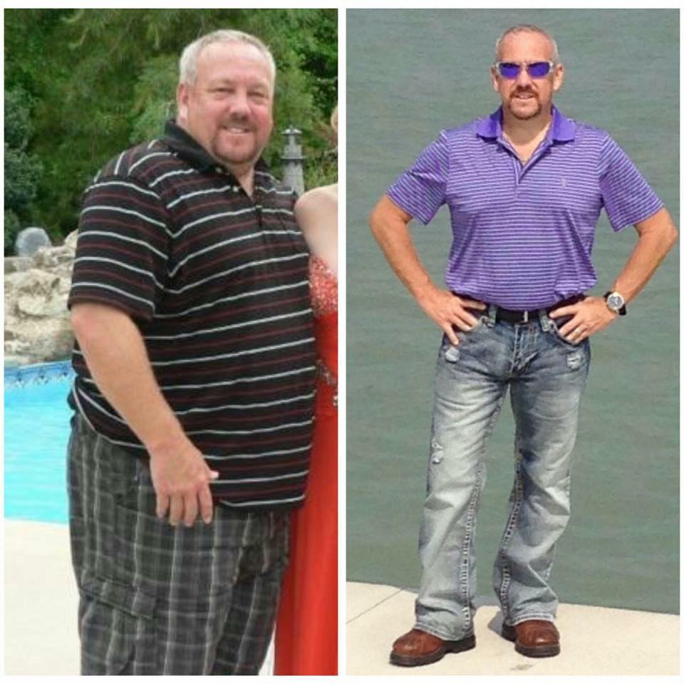 pose weight loss surgery reviews