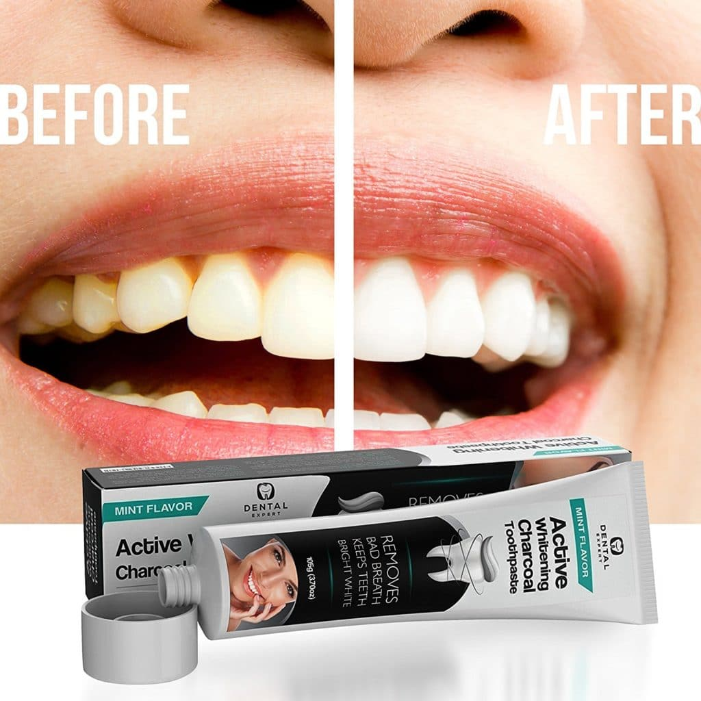 lush charcoal teeth whitening review