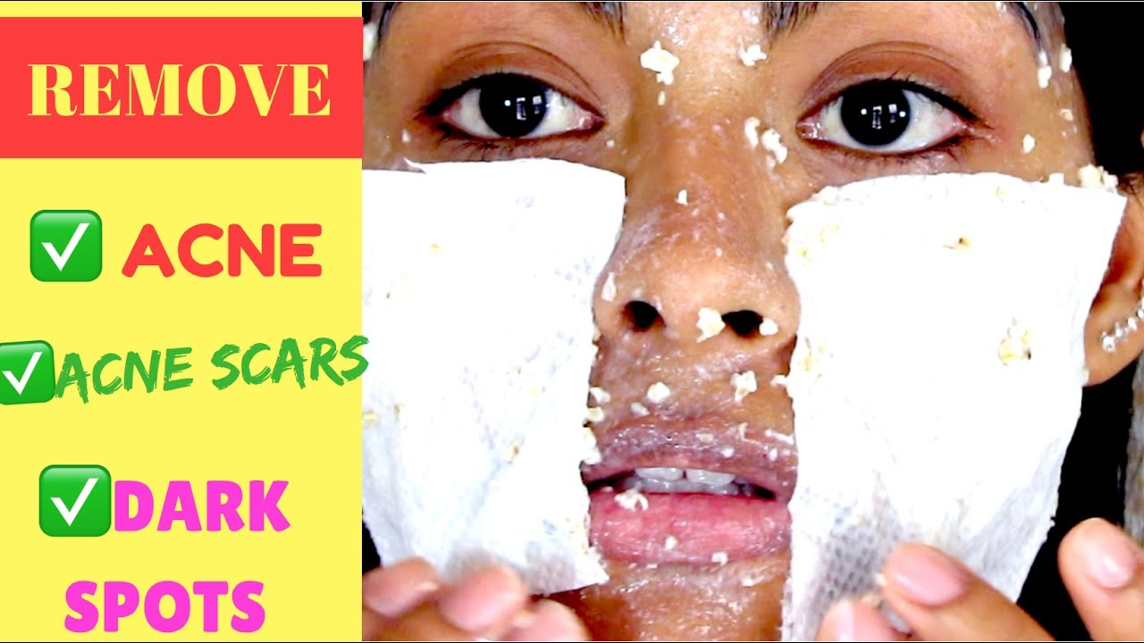 oatmeal mask for acne reviews