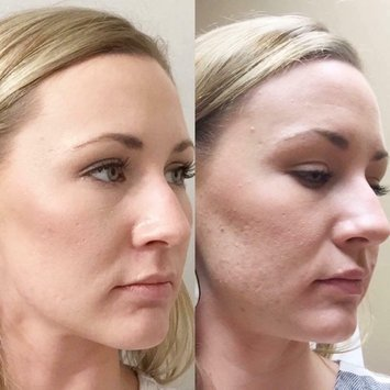 rodan and fields anti age regimen reviews