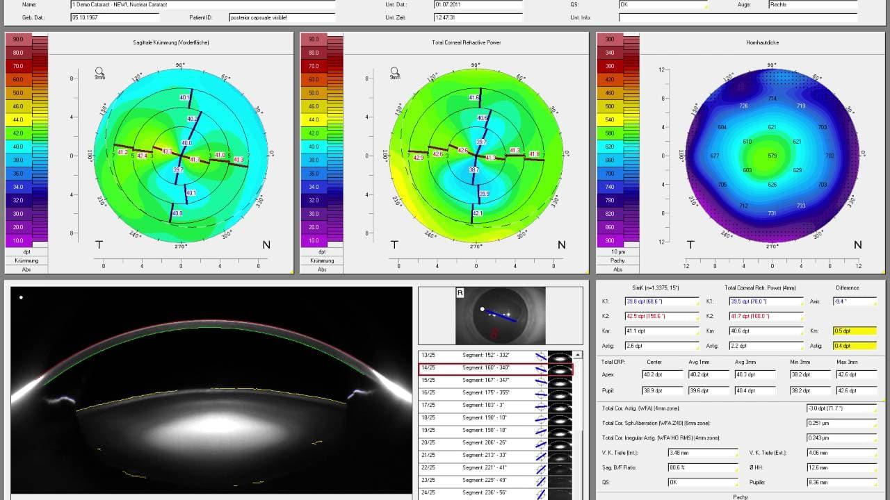 wavefront laser eye surgery reviews